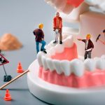 Goldstein Dental Group Fixes Cracked Teeth and Gum Recession
