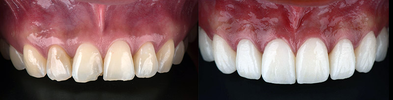teeth before and after dental veneers procedure